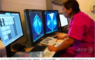 末期乳がん、免疫療法で完治 世界初の試験結果を発表